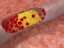 Что делать если Повышенный уровень холестерина в крови
